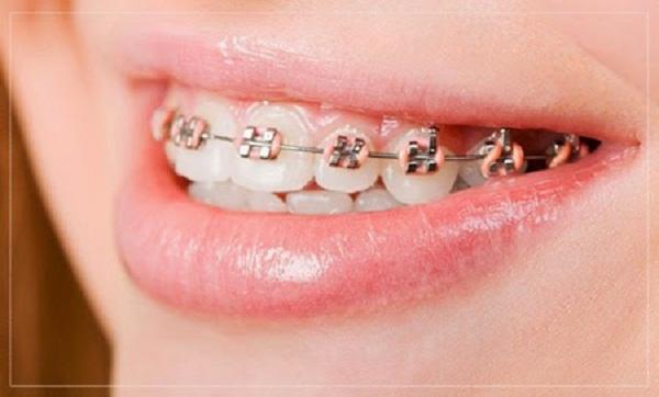 Niềng răng có thể hôn được không?